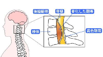 大隣憲司の難病「黄色靭帯骨化症」
